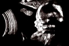 20 Week Ultrasound 5