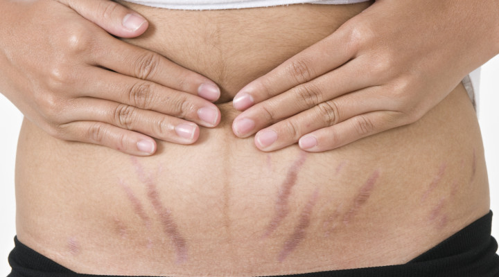 Remove Stretch Marks After Pregnancy