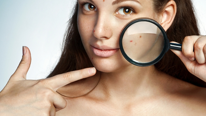 Remedies To Reduce Pimples During Pregnancy Time