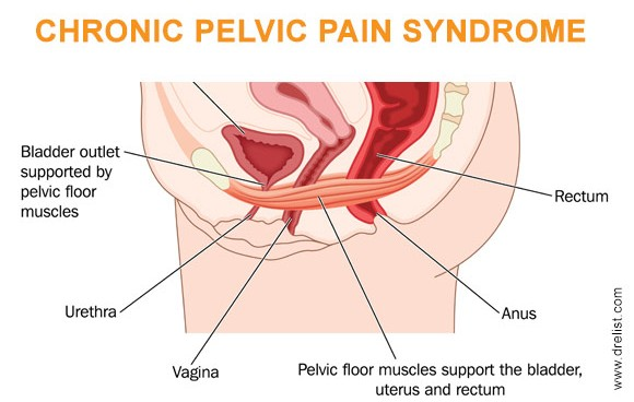 Pelvic and vaginal pain