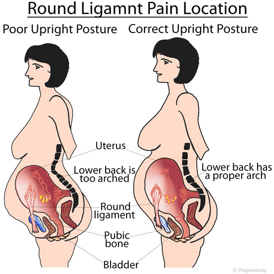 Round Ligament Pain Location