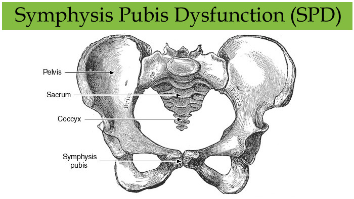 Symphysis Pubis Dysfunction (SPD)