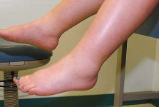 Swelling During Pregnancy