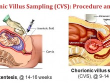 Chorionic Villus Sampling (CVS): Procedure and Risks