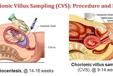 Chorionic Villus Sampling (CVS): Procedure and Risks